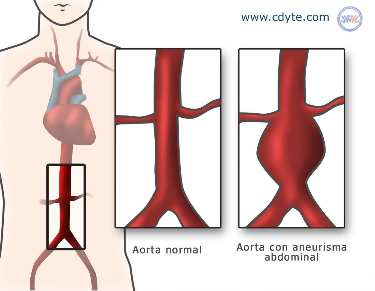 Tratamiento endovascular del Aneurisma Abdominal de Aorta