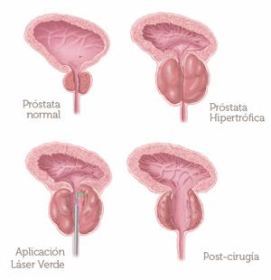 cirugía de próstata con láser o turpi